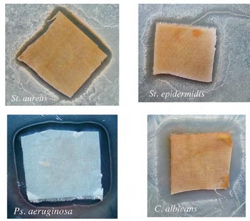 نتایج برای نمونههای پنبهای درمان شده با نانوذرات نقره